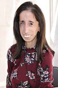Best quotes by Lizzie Velasquez