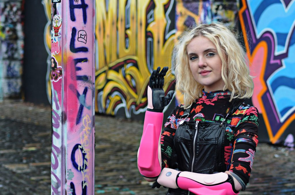 Open Bionics Empowers Amputees with The Hero Arm Prosthetic