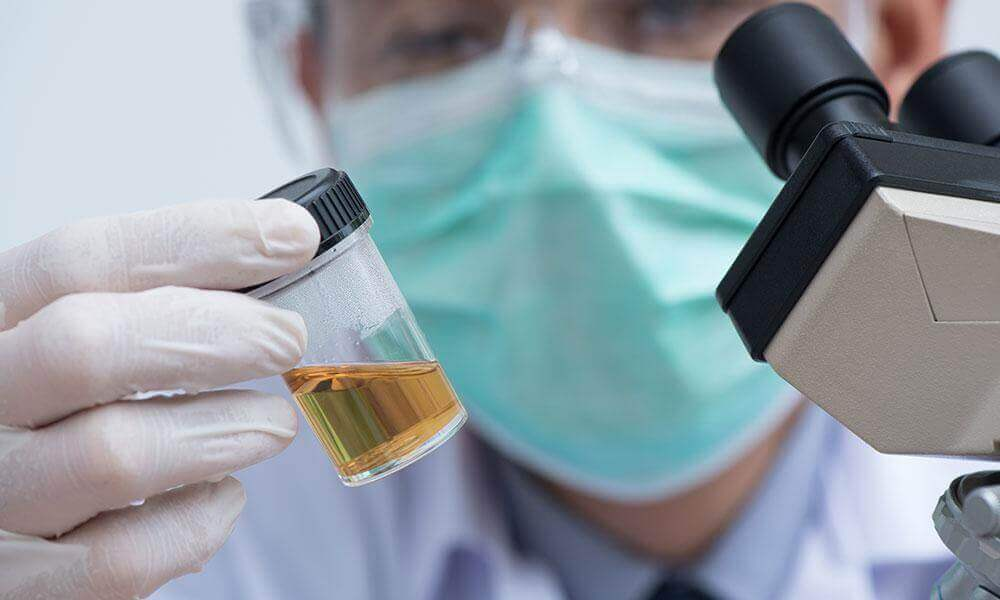 New AI-Powered Urine Test Can Precisely Diagnose Prostate Cancer